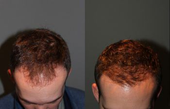 28 year old male one year postop from a Neograft FUE frontal hair transplant restoration procedure using 1500 grafts. - View 1 -