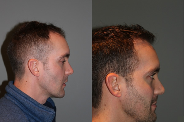 28 year old male one year postop from a Neograft FUE frontal hair transplant restoration procedure using 1500 grafts. - View 4 -