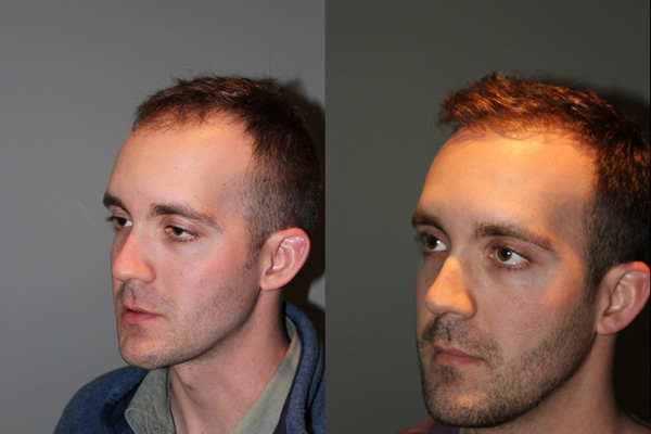 28 year old male one year postop from a Neograft FUE frontal hair transplant restoration procedure using 1500 grafts. - View 5 -