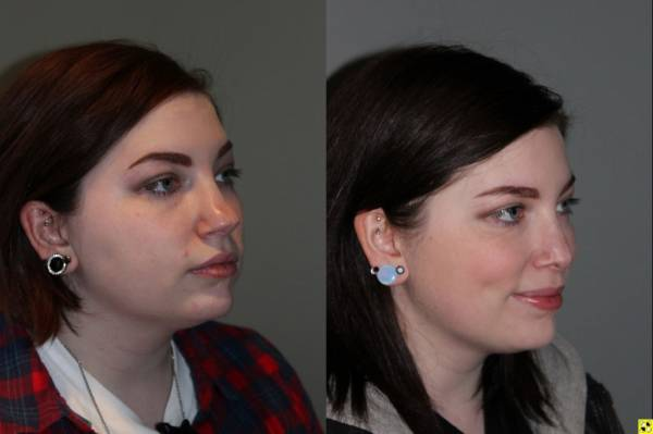 Rhinoplasty - 26 year old female 6 months following rhinoplasty for a large, over projected bulbous nasal tip and kybella injections for the double chin