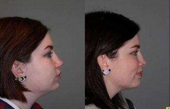 - 26 year old female 5 months following kybella injections to the double chin and rhinoplasty for a large, over projected, bulbous nasal tip