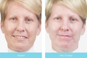 photo of a woman before and after 12 weeks of using Obagi products