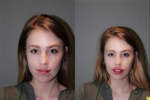 Lip Injections - 27 year old female lip augmentation with Juvederm using Dr. Stong's bruise-free, no downtime microcannula technique.