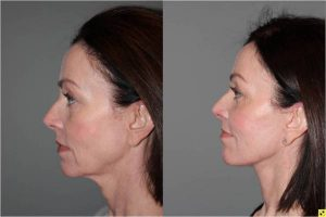 Before & After S-Lift Facelift and Lower Blepharoplasty - Correction of aging neck, jaw line and lower eyelids. 49 year old female desiring correction of her aging neck and jaw line and the bags/puffiness under her eyes. She underwent S-Lift facelift and lower eyelid blepharoplasty with fat transposition 4 months previously.