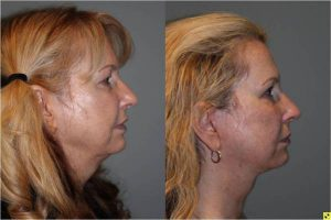 Upper Blepharoplasty & The KalosLift - 54 year old female upper blepharoplasty and The KalosLift 3.5 mos post op.