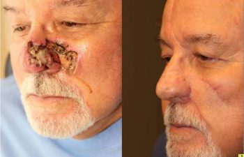 Skin Cancer Reconstruction - 75 year old male 4 month post op paramedian forehead flap, ear cartilage graft, and cheek advancement flap skin caner reconstruction.