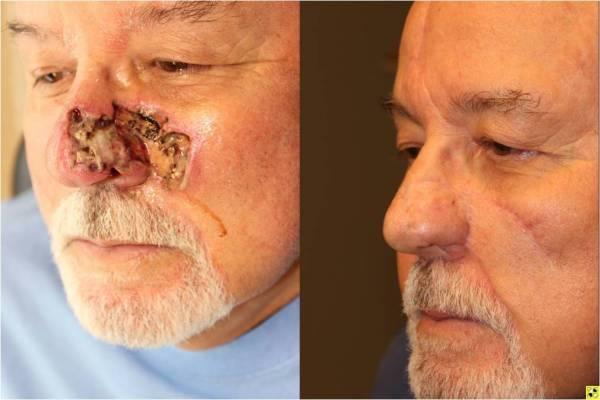 Facial skin flap repair pictures — photo 11