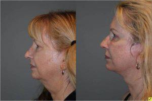 Upper Blepharoplasty & The KalosLift - 54 year old female upper blepharoplasty and The KalosLift 3.5 mos post op.