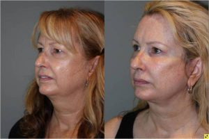Upper Blepharoplasty & Mini Deep Plane Facelift - 54 year old female upper blepharoplasty and mini deep plane facelift 3.5 mos post op