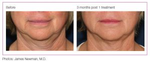 graphic showing the difference in the skin after 3 months of treatment. photo by james newman, m.d.