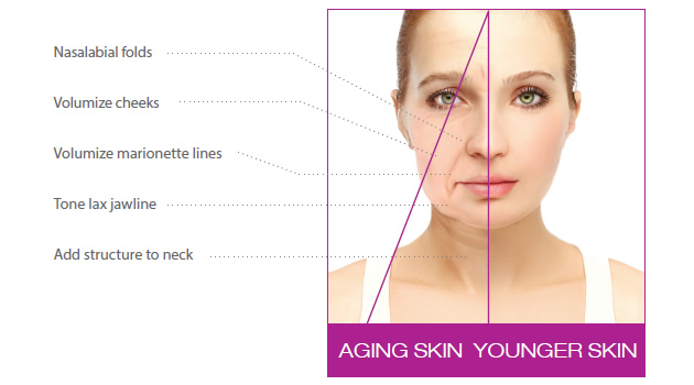 graphic showing the difference in nasalabial folds, volumize cheecks, volumize marionette lines, tone lax jawline and added structure to the neck in young and aging skin