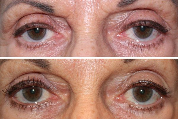 Before & After Upper eyelid ptosis repair - 68 year old female 5 months following a bilateral upper eyelid ptosis repair to raise the position of the upper eyelid, creating a more vibrant, youthful appearance to the eyes.