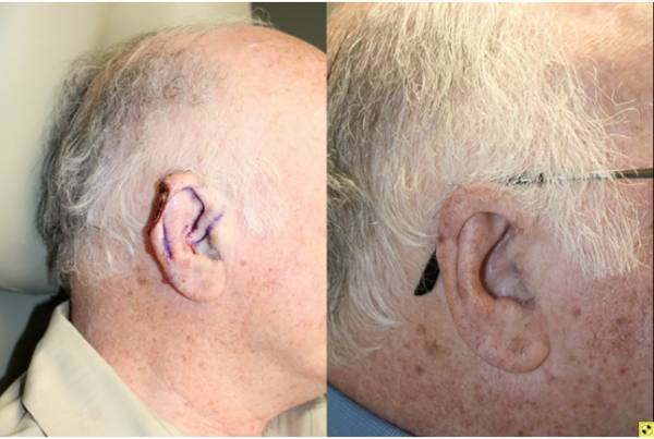 Before & After Cartilage defect of the helical rim - 77 year old male 3 months post op with skin and cartilage defect of the helical rim requiring V to Y advancement flap reconstruction to repair defect.