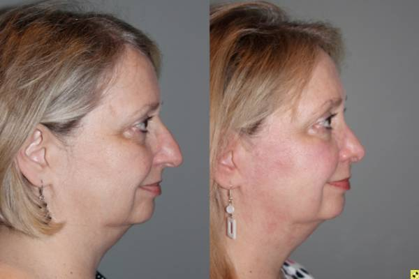 Cosmetic Rhinoplasty - Cosmetic Rhinoplasty performed on 59yo female to reduce the over all size, the bridge or hump, and to elevate and refine the tip.