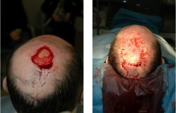 Before & After Scalp Reconstruction - Scalp Reconstruction performed for large post-Mohs defects using a multi-flap reconstruction technique.