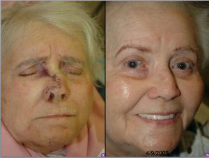 Before & After Imperceptible scar - Imperceptible scar - Meticulous soft tissue technique results in an imperceptible scar.