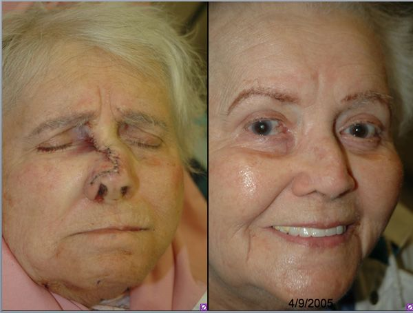 Before & After Imperceptible scar - Meticulous soft tissue technique results in an imperceptible scar.