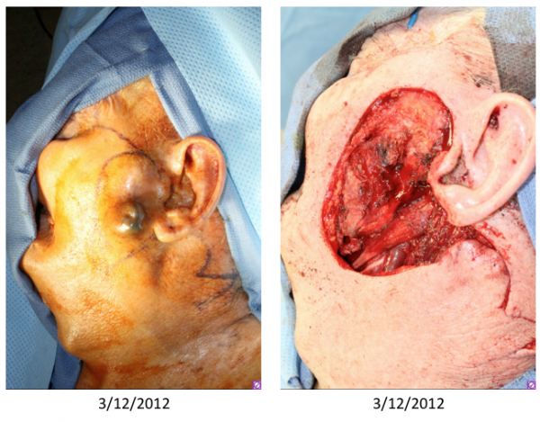Before & After Wide local excision for melanoma with a secondary large lateral cheek defect - Wide local excision for melanoma with a secondary large lateral cheek defect - 82 year old male undergoing wide local excision for melanoma with a secondary large lateral cheek defect requiring a cervicofacial myocutaneous bilobed flap reconstruction.