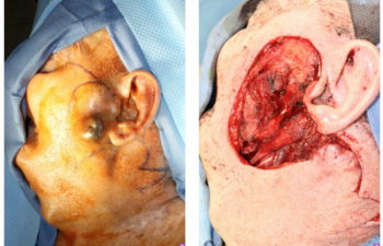 Wide local excision for melanoma with a secondary large lateral cheek defect - 82 year old male undergoing wide local excision for melanoma with a secondary large lateral cheek defect requiring a cervicofacial myocutaneous bilobed flap reconstruction.