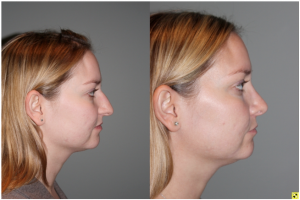 Cosmetic Rhinoplasty - Cosmetic Rhinoplasty performed on 29yo female for bridge/hump reduction and tip refinement. Right side view.