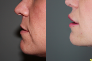 Before & After Lip augmentation with Juvederm - Lip augmentation with Juvederm