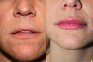 Lip augmentation with Juvederm - before and after.