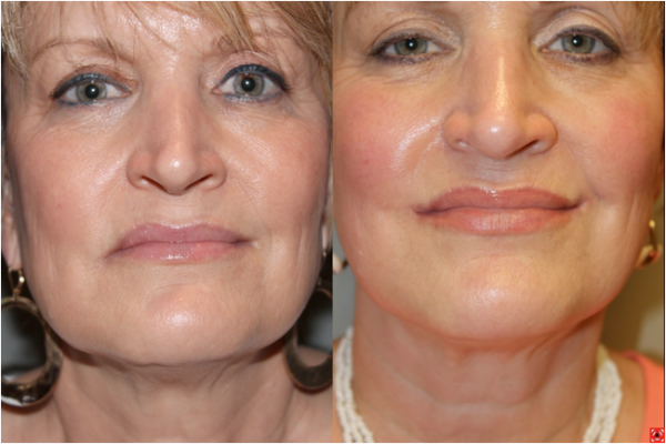 Before & After Corner Mouth Lip Lift - 55 year old female under went a corner of mouth lip lift to correct the drooping that occurs with age and create a youthful, attractive, upturn at the corners of the mouth.
