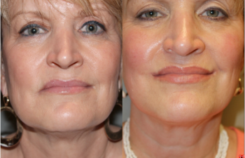 Corner Mouth Lip Lift - Corner Mouth Lip Lift - 55 year old female under went a corner of mouth lip lift to correct the drooping that occurs with age and create a youthful, attractive, upturn at the corners of the mouth.
