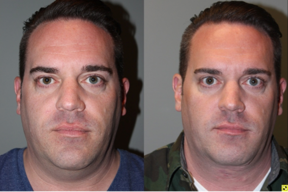 Male Direct Neck Lift - 39 year old male one year follow up after Grecian Urn direct neck lift.