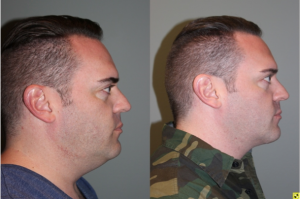 Before & After Male Direct Neck Lift - 39 year old male one year follow up after Grecian Urn direct neck lift.