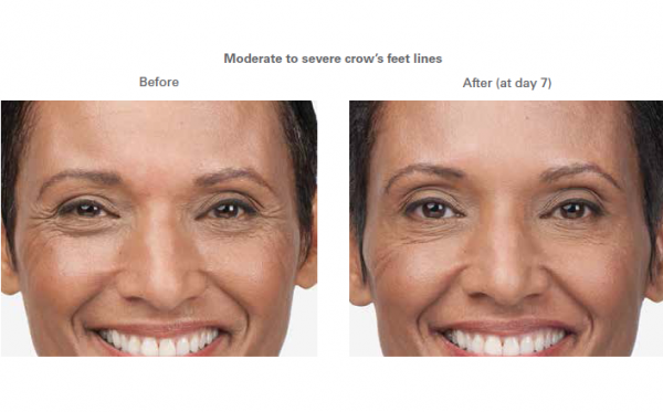 Moderate to severe smile lines -