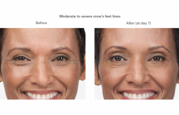 Moderate to severe smile lines - before and after.