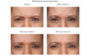 Moderate to severe frown lines - before and after.