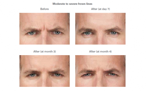 Moderate to severe frown lines -