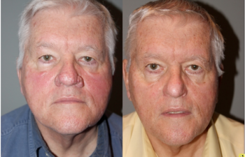 Rhinophyma Treatment - 71 year old male with Rhinophyma 6 months following electrocautery loop excision.
