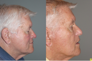 Before & After Rhinophyma - 71 year old male with Rhinophyma 6 months following electrocautery loop excision
