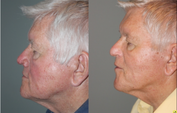 Before & After Rhinophyma - 71 year old male with Rhinophyma 6 months following electrocautery loop excision.