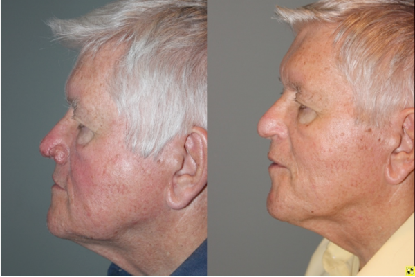 Before & After Rhinophyma