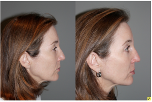Blepoharoplasty/Rhinoplasty - 52 yo female s/p upper blepoharoplasty, lower blepharoplasty with fat transposition, and a rhinoplasty to refine tip and narrow bridge. Patient requested subtle results and not to alter height of the bridge of her nose.