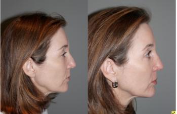 Blepoharoplasty/Rhinoplasty -