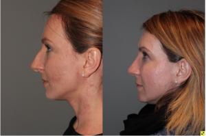 Rhinoplasty - 39 year old female 3 months following her rhinoplasty