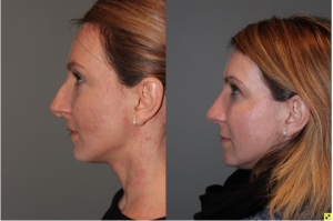 Rhinoplasty - 39 year old female 3 months following her rhinoplasty.