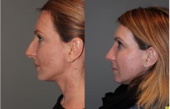 Rhinoplasty - 39 year old female 3 months following her rhinoplasty.