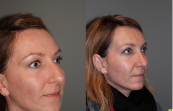 Rhinoplasty - 39 year old female 3 months following her rhinoplasty