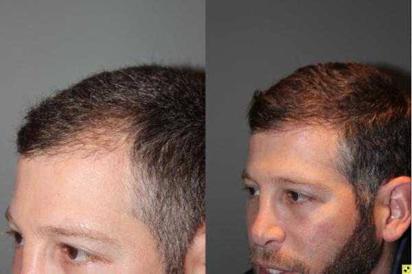 Atlanta Hair Neograft Transplant Buckhead Hair Replacement