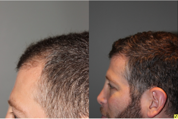 Not clear. No sex day after hair transplant are mistaken