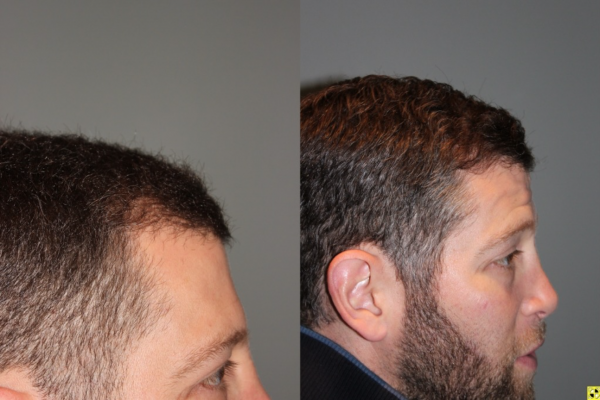 36 yo male 6 months after neograft hair transplant procedure with 1500 grafts- View 3 -