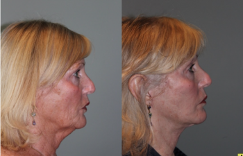 S-lift Mini Deep Plane Facelift - 71 Year old female 5 months post op from and S-lift Mini Deep Plane Facelift