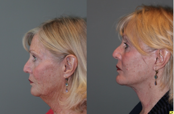 S-lift The KalosLift - 71 Year old female 5 months post op from and S-lift The KalosLift.