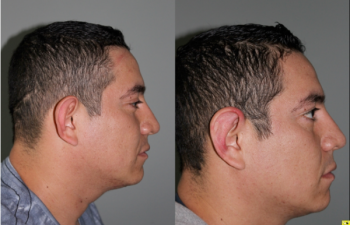 30 Year old male two weeks after invisible scar otoplasty -